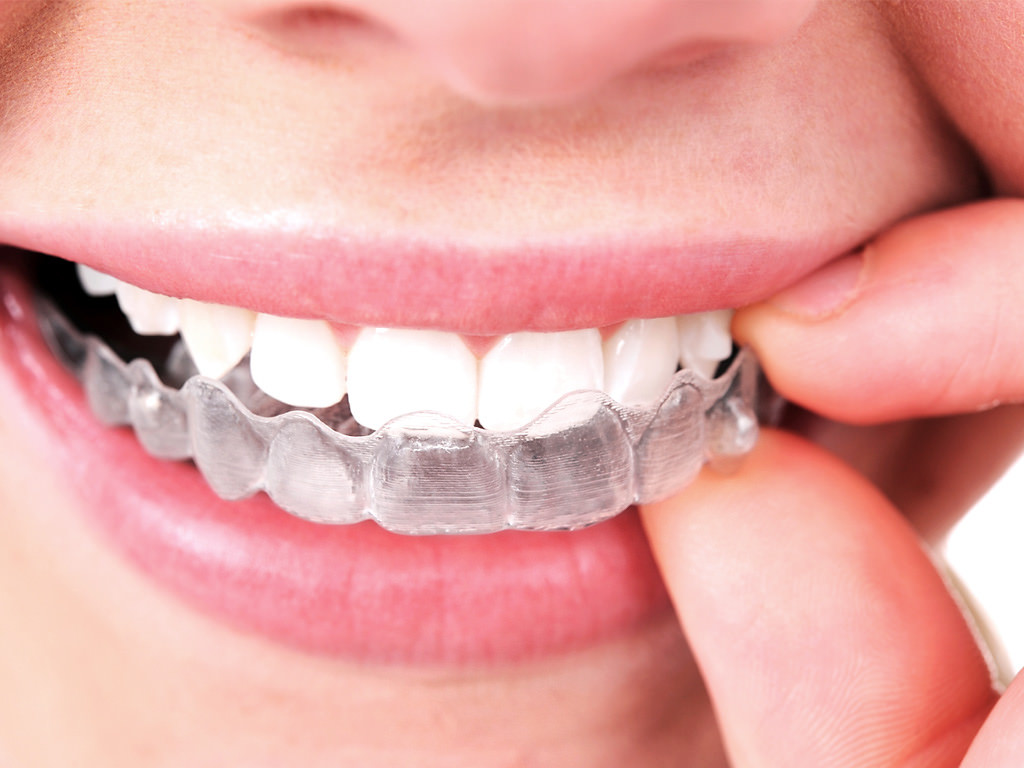 Co to jest Invisalign?